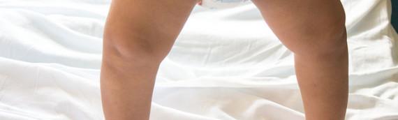Bambini con le Gambe storte: a cosa prestare Attenzione